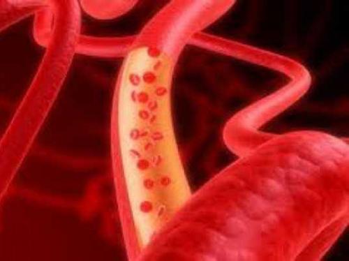 صور عوارض ضعف الدم