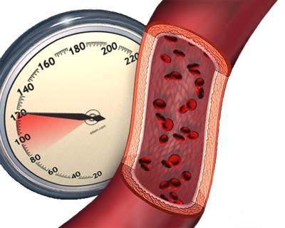 صوره القلبي انخفاض الضغط