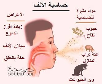 صور حساسية الانف وانواعها وعلاجها