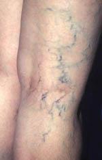 صور مرض الدوالي