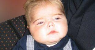 صور اضرار الكورتيزون على الاطفال