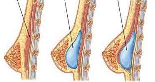 بالصور وصفات لزيادة حجم الثديين 57c805d2fb16e85f2f65db194ea7df51 310x165