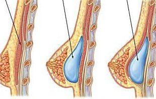 صور وصفات لزيادة حجم الثديين