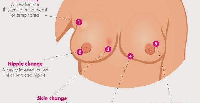 صور حكة في الثدي
