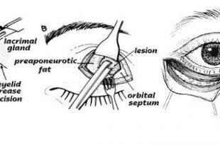 صوره ما هو عدد عضلات العين