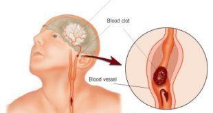 علاج الجلطة الدماغية بالقران