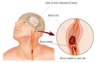 صور علاج الجلطة الدماغية بالقران