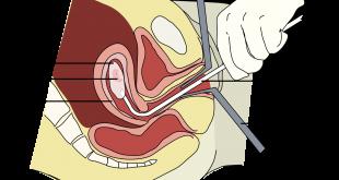 اساليب الاجهاض