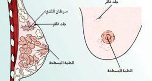 صور اعراض السرطان المبكر