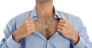 صورة الشعر الزائد عند الرجال
