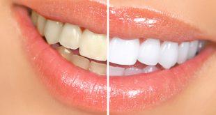 اسهل واسرع طريقة لتبيض الاسنان , ولا اسهل وهتكوني اجمل بنت
