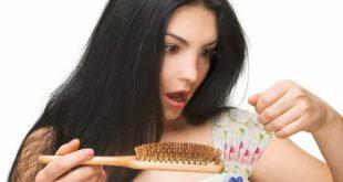 علاج تساقط الشعر , تساقط شعر النساء