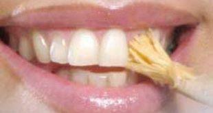 صورة طرق تبيض الاسنان , اكتر من طريقه لتبيض الاسنان بدون عناء 11844 3 310x165