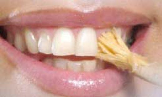 صور طرق تبيض الاسنان , اكتر من طريقه لتبيض الاسنان بدون عناء