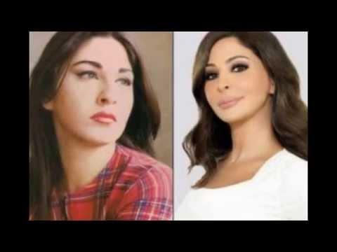 صورة صور المشاهير قبل وبعد عمليات التجميل