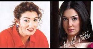 صور المشاهير قبل وبعد عمليات التجميل