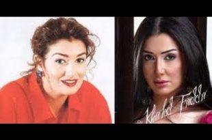 صور صور المشاهير قبل وبعد عمليات التجميل