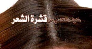التخلص من القشرة في الشعر نهائيا