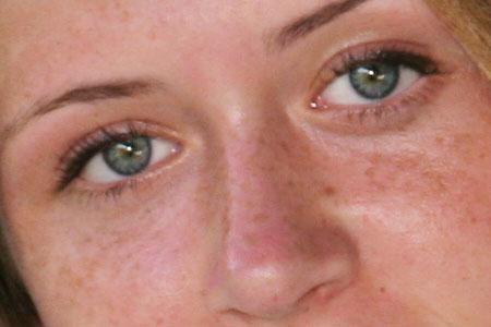 صورة علاج الكلف بالاعشاب , علاج الكلف والنمش