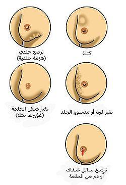 صورة الاحساس بوجود كتله في الثدي مع ارتفاع , معنى وجود كتلة