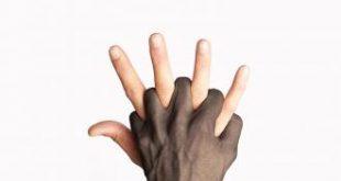 مفهوم العنصرية , مفهوم التمييز العنصرى