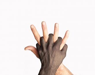 صورة مفهوم العنصرية , مفهوم التمييز العنصرى