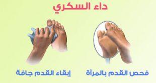علاج من جرح لذى مريض مصاب داء السكر