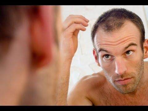 صورة اسرع طريقة لنمو الشعر للرجال