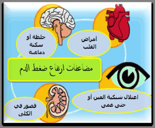 صور اعراض ضغط الدم