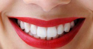 اسرع علاج لتبيض الاسنان