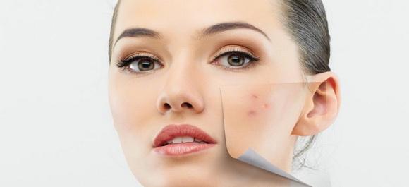 صورة افضل طرق لعلاج حبوب الوجه للبنات