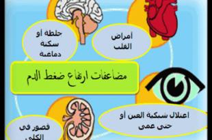صور علامات ارتفاع ضغط الدم