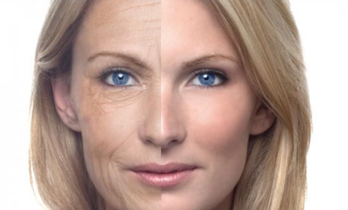 صورة تجاعيد الوجه وكيفيه التخلص منها