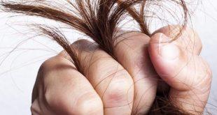 صور علاج لجفاف الشعر , بعد هذه الوصفة سيزول الجفاف عن تجربه