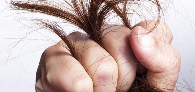 بالصور علاج لجفاف الشعر , بعد هذه الوصفة سيزول الجفاف عن تجربه 126152